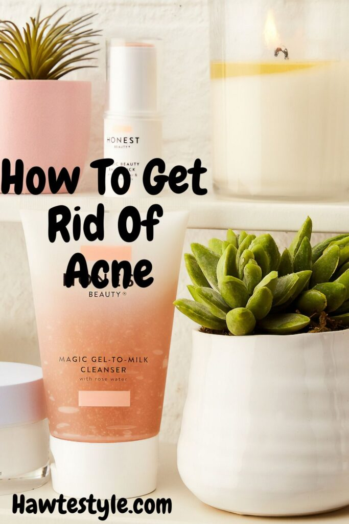 Best Remedies For Getting Rid Of Adult Acne